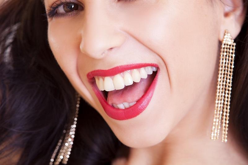 Zähnebleaching macht Ihr Lächeln heller und schöner